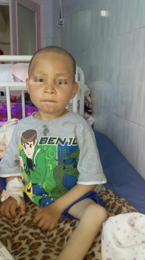 Enfant atteint de la Phénylcétonurie