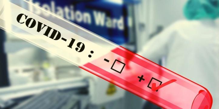 Compteur coronavirus : 3.254 nouveaux cas et 51 décès en 24H
