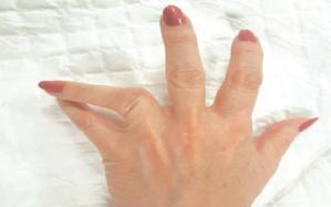 La luxation des doigts : Quel traitement ?