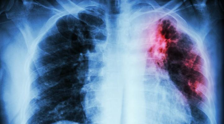 Journée mondiale de lutte contre la tuberculose : Quid de la situation à l'ère du Covid-19 ?