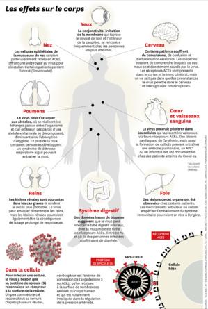 Covid long : lorsque le coronavirus devient maladie chronique