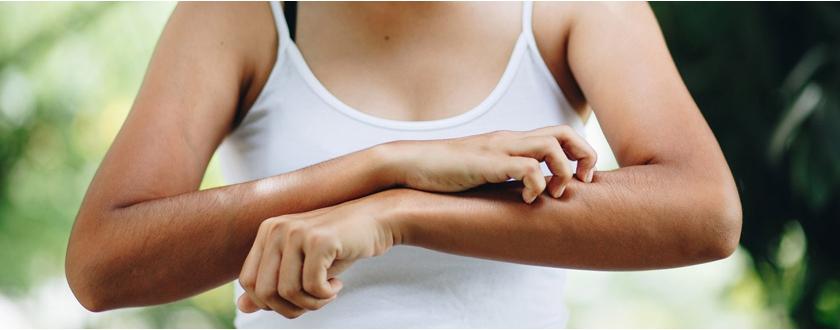 Huiles essentielles, répulsifs, bracelets... Comment se protéger contre les moustiques ?