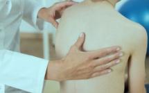 Scoliose : quels symptômes, comment la soulager ?